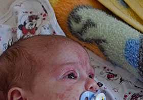 WHO/Europe | Measles and rubella
